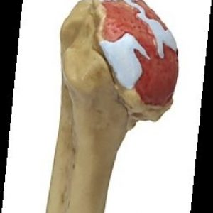 G1800 - 4-Stage Osteoarthritis Shoulder