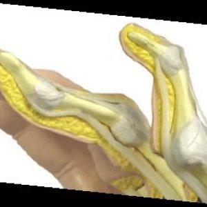G1931 - Rheumatoid Arthritis Hand