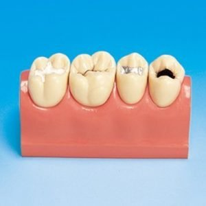 P23-TR.203 - Sealant and Caries