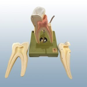 ES-11/5 - Upper 1st Molar (8x Enlarged)