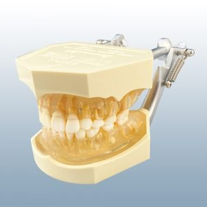 I6D-400J - Mixed Dentition Anatomical Model