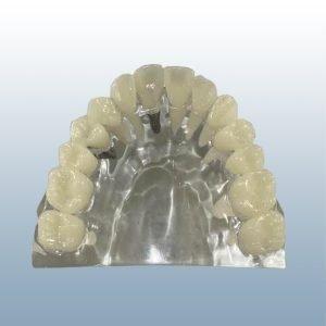 K-5 - Implant vs Bridge