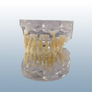 P12P-100B - Primary Dentition (Age 3)