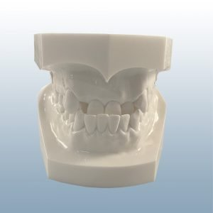 D1-01A - Class I Reversed Occlusion