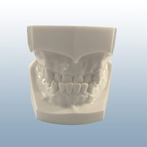 D1-03A - Class III Reversed Occlusion