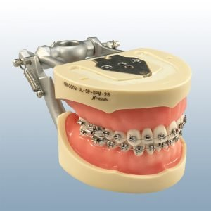 D85SDP-200PB - Soft Tissue Ortho