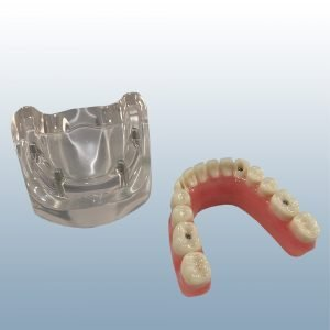 LH-4 - Over Denture Mandible (All on 4)