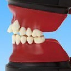 Ortho Wax Forms