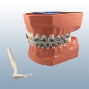 PE-ORT002 - Enlarged Ortho Toothbrushing Model
