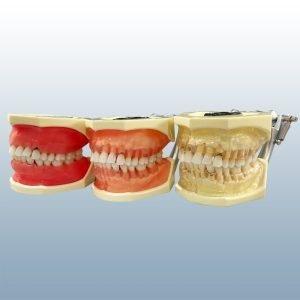 Dental Hygiene Board Prep