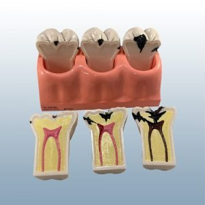 TR.7 - Progression of Caries (Enlarged 5x)
