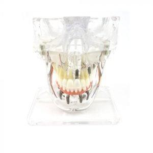 Implant / Overdenture