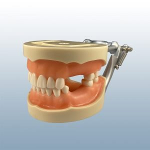 D95SDP-MAU.2 - Partially Edentulous, Soft Tissue Model