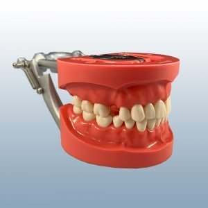 D91DP-UFL.5 - Partially Edentulous Hard Tissue Model