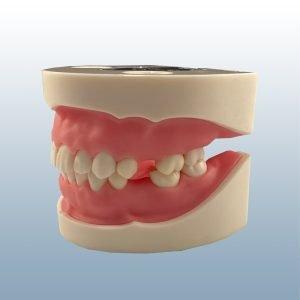 IMP1042 - Custom Implant and Suturing Training Model
