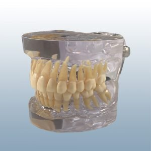 P12P-SB1 - 28 Tooth, Class I Dentition