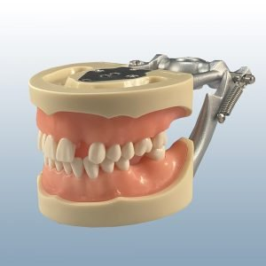 D85SDP-UCO.10 - Partially Edentulous, Soft Tissue Model